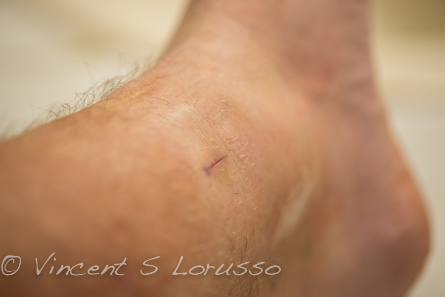 Quarter inch incision is all that remains.
